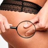 женщина ищет у себя целлюлит с лупой, фото